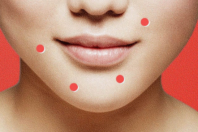 Hands Off! How To Stop Picking At Those Blemishes