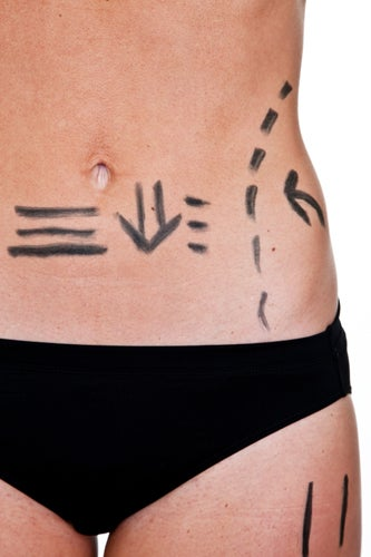 Cellulite-treatment-liposuction